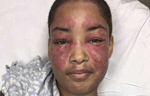 Alergie na světlo jí ničí tvář i život! Lékaři si neví rady