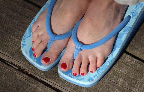 Co jste nevěděli o žabkách? Oblíbená obuv ničí naše nohy!