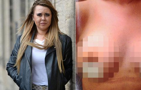 Dívka (24) chtěla krásnější prsa: Po zpackané plastice přišla o bradavky