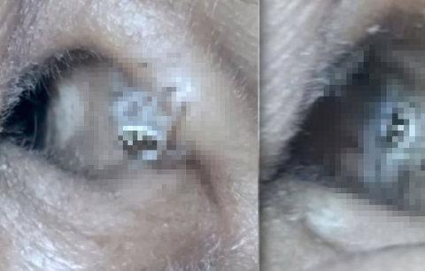 Žena trpěla bolestí hlavy: Neuvěříte, co živého jí lékaři vytáhli z ucha!