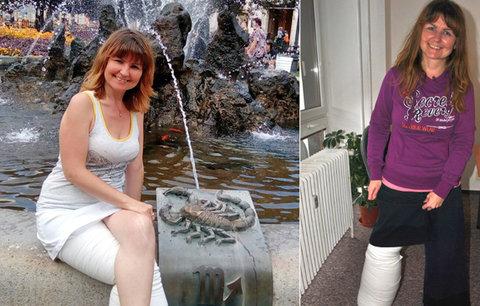 Zoufalá maminka Zuzana čeká 15 let na pomoc: Noha jí otekla do obřích rozměrů
