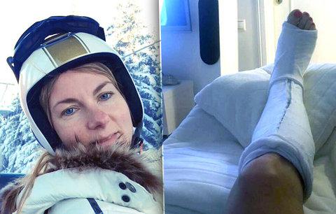 Moderátorka Mráčková skončila v nemocnici: Se zlomenou nohou ještě lyžovala!
