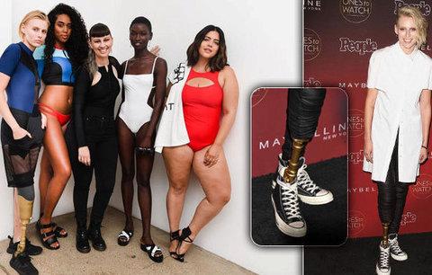 Modelka přišla kvůli tamponu o nohu: Teď jí amputovali i druhou!