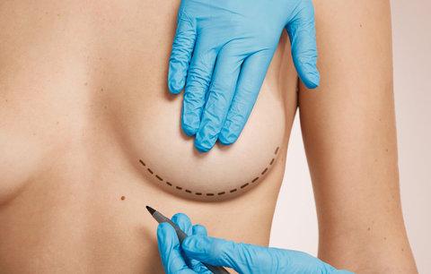 Případ vadných silikonů se vrací. Nebezpečné prsní implantáty mělo i 2000 Češek