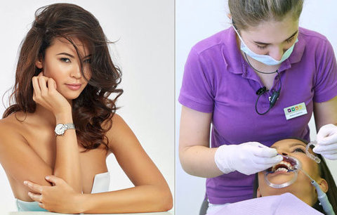 Hvězda Primy Leová skončila na zubařském křesle: Snad nebudu šišlat!