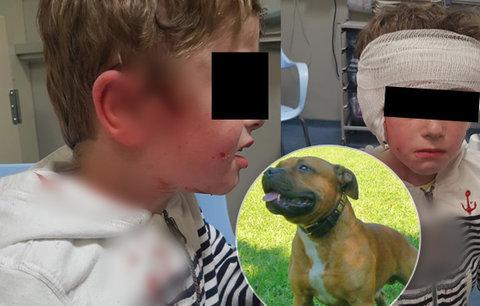 Pes se zakousl chlapci do hlavy (5): Ze sevření čelistí ho vysvobodila jeho máma s tetou