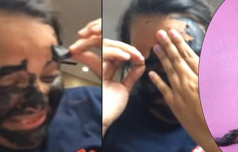 Dívka při odstraňování pleťové masky přišla o obočí! Nepřečetla si návod