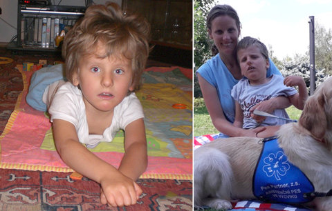 Filípek (8) s vzácnou genetickou nemocí: V Česku  jí trpí jen čtyři kluci! Většina umírá před porodem