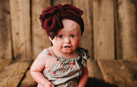 Kůže jí roste rychleji než tělo! Vzácné onemocnění malé Anny děsí okolí