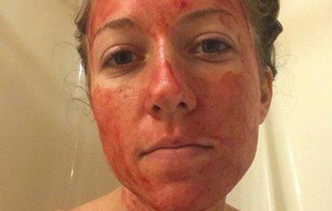 Menstruace je normální! Američanka s krví na obličeji bojuje za sebepřijetí žen