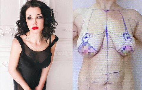 Falešná ruská lékařka zhyzdila desítky žen! Operovala doma, z fotek zákroků mrazí