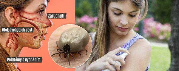 Vosy, včely, sršni, komáři a klíšťata: Znepříjemňují nám v létě život