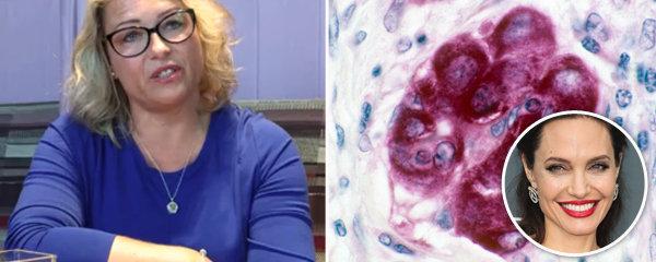 Paní Radka s rakovinou prsu: Ňadra jí prohmatal partner! Podle Angeliny Jolie