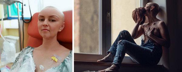 Fotky, ze kterých mrazí! Trojnásobná máma ukázala svůj boj s rakovinou a poslala jasný vzkaz