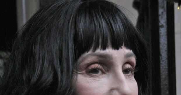 Cher má za sebou desítky plastických operací