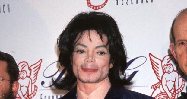 Michael Jackson  byl famózní zpěvák, na sklonku jeho života se na něm ale promítaly plastické operace a zdravotní problémy.