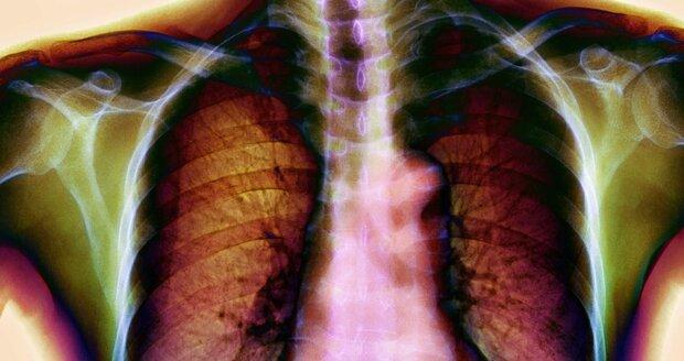 Rentgenový snímek rakoviny plic se zřetelným karcinomem