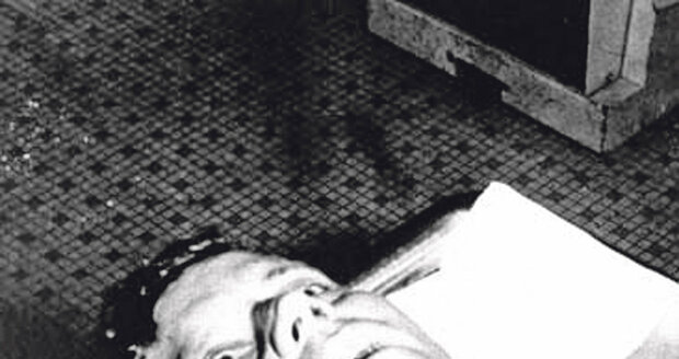 Snímek z Kennedyho pitvy