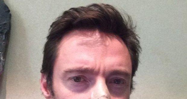 Hugh Jackman ukázal fotku po operaci.