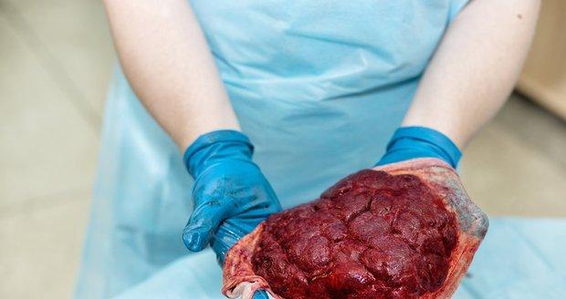 Takto vypadá placenta těsně po porodu.