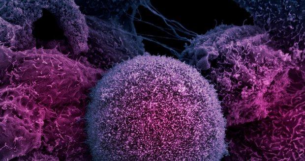 Buňka rakoviny.