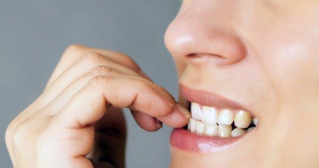 Kousání nehtů škodí nejen vašim rukám, ale i zubům a celkovému zdraví