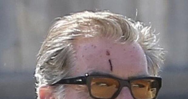 Pierce Brosnan s osklivou jizvou na čele