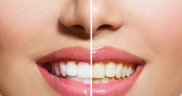 Máte zažloutlé zuby od kávy, kouření nebo třeba červeného vína? Nemusíte hned na bělení k odborníkovi!