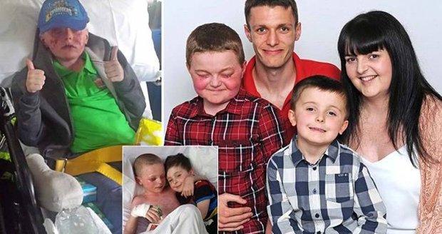 Chlapec téměř oslepl a z těla mu odpadávala kůže poté, co mu dali antibiotika