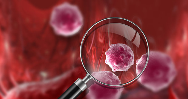 Rakovina (ilustrační foto)
