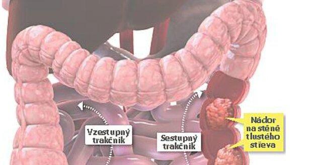 Češi drží smutné prvenství v počtu případů rakoviny tlustého střeva v Evropě.