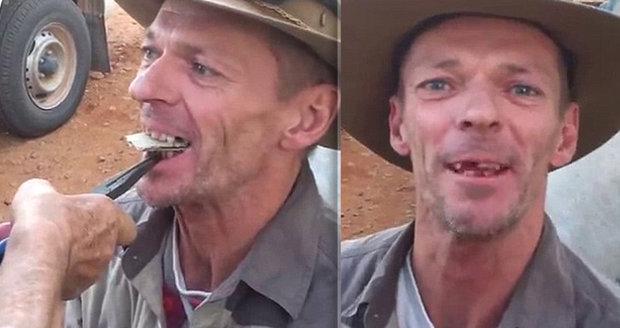 Zubař z buše se s prohnilými zuby vůbec nepáře.