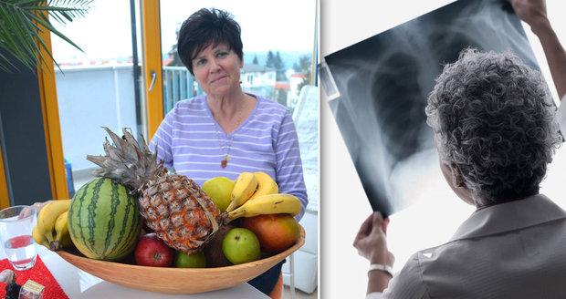 """""""Neviděla jsem rentgen."""" Přiznání lékařky, která uznala léčbu rakoviny šťávami"""