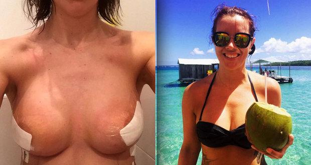 Rakovina jí vzala mámu a sestru. Dívka si nechala vzít prsa a vyrazila na cestu kolem světa