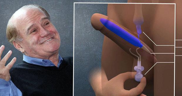 72letý pacient si penilní implantát nemůže vynachválit.