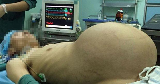 Číňan měl v břiše 15kilový nádor.