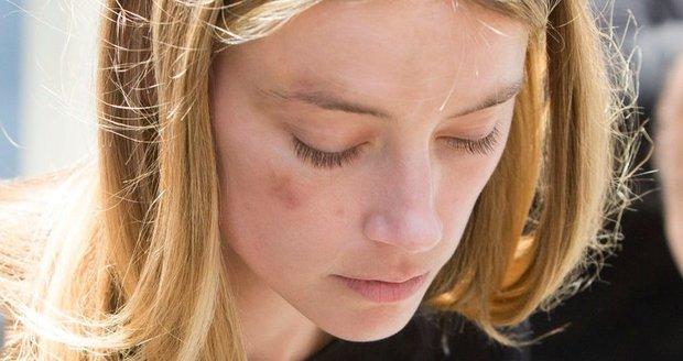 Na hereččině tváři jsou stále patrné stopy po ráně, kterou jí měl uštědřit Depp jejím telefonem.