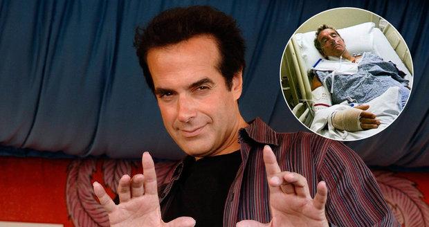 David Copperfield Má Problém Jeho Kouzlo Skončilo Poraněním Mozku