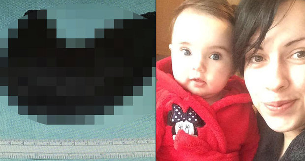 Mladá maminka pojídala své vlasy: Z břicha jí vyoperovali šestikilový chomáč