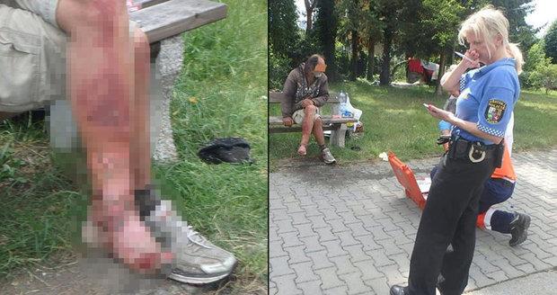 Jen pro silné povahy: Muž z Plzně hnil zaživa, žrali ho červi