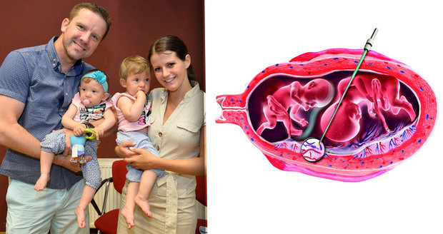 Dvojčata žijí díky operaci přímo v děloze. Unikátní zákrok provedli v porodnici v pražském Podolí