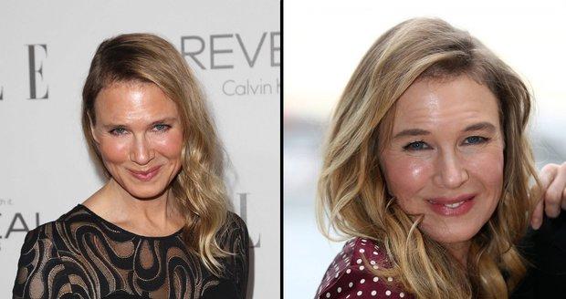 Renée vlevo v roce 2014 a nyní