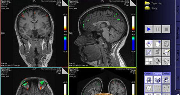 Magnetická rezonance by v budocnosti mohla pomoct k odhalování zločinů.
