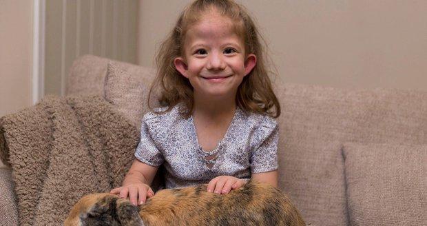 Matilda trpí Sensenbrennerovým syndromem.