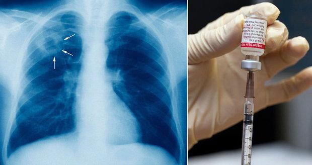 Tuberkulóza se vrací do Česka, nakazilo se dítě. Lékař varuje: Bude hůř