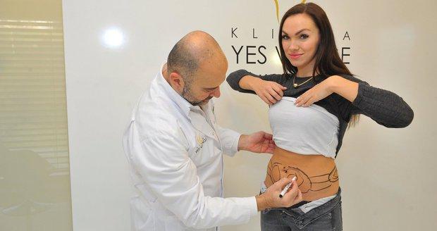 Kamila Nývltová podstoupila liposukci břicha.