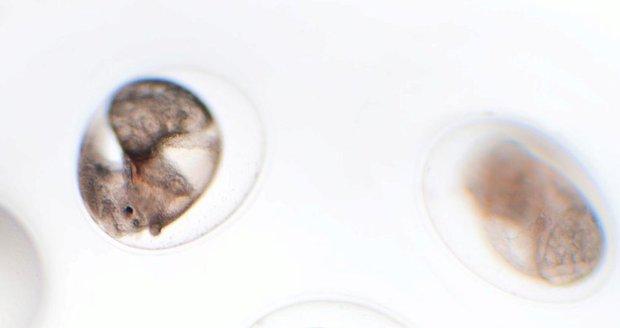 Záměna embryí v Česku: Klinika popletla jména žen, zněla podobně