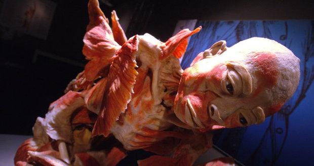 Do Prahy opět zavítá výstava lidských těl a orgánů.