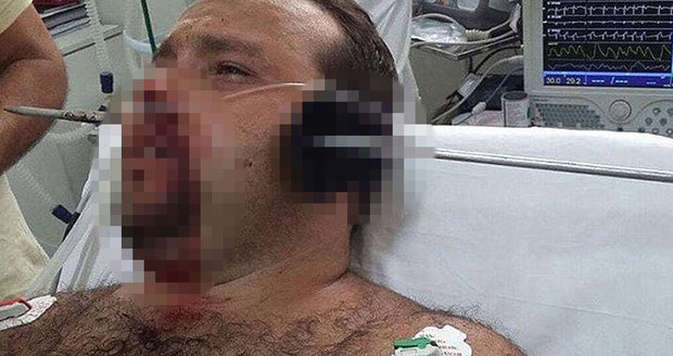 Rybáři probodla harpuna hlavou, brutální zranění zázrakem přežil