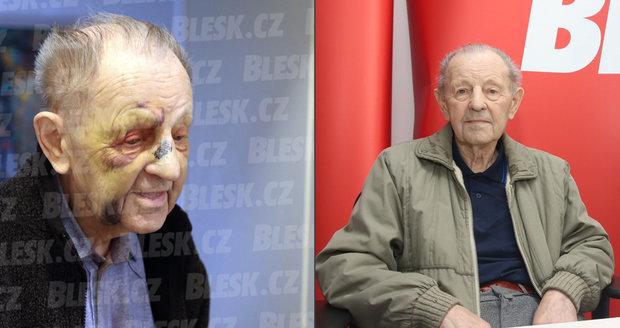 Komunista Milouš Jakeš (94) skončil s pobitým obličejem: Kdo ho takhle brutálně zřídil?